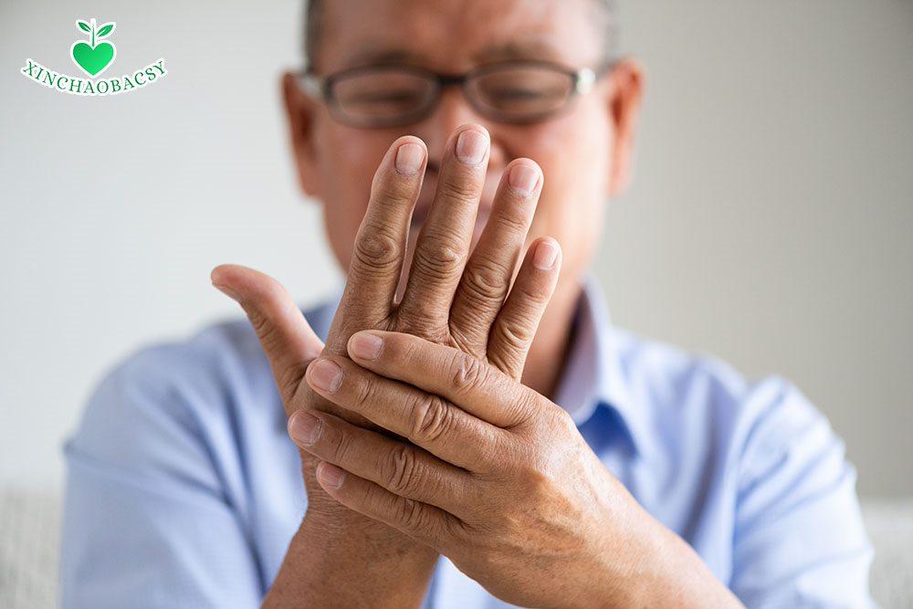 Những điều cần biết về bệnh phong thấp ra mồ hôi tay chân